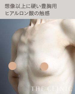 ヒアルロン酸豊胸のデメリット:触感が想像以上に硬い