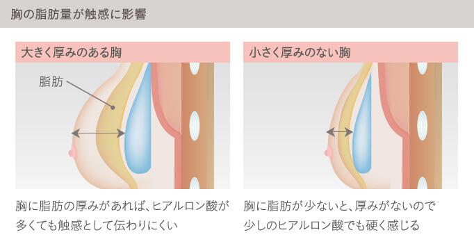 ヒアルロン酸豊胸は胸の脂肪量が触感に影響