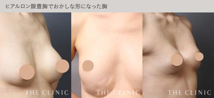 ヒアルロン酸豊胸で不自然な触感や形になったバスト