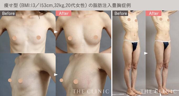痩せ型の脂肪注入豊胸の例