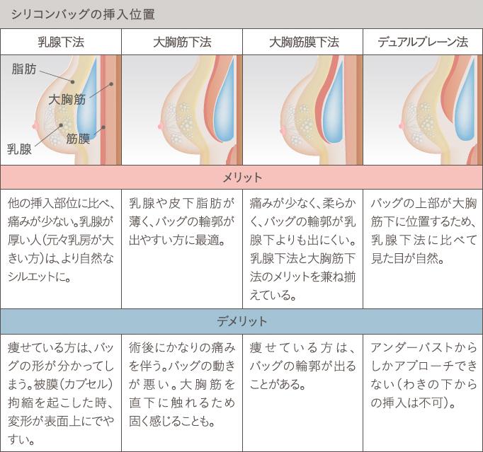 シリコンバッグ豊胸の挿入位置