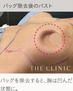 シリコンバッグ豊胸のデメリット:胸の変形