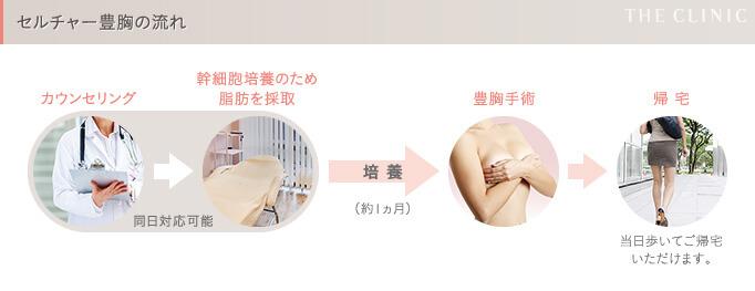 セルチャー豊胸(幹細胞培養豊胸)の手順
