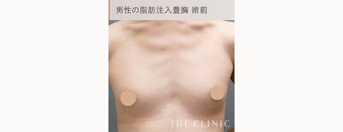 男性の脂肪中注入豊胸術前の写真