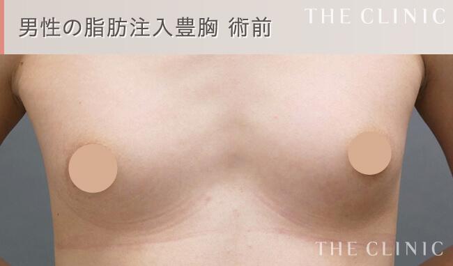 男性の脂肪注入豊胸術前の写真