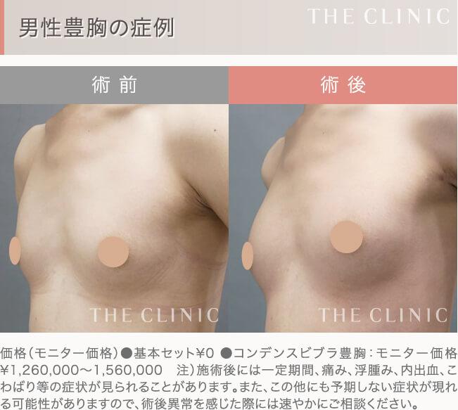 男性豊胸の症例写真(ビフォーアフター)